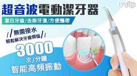 電動牙刷/牙刷/超音波/潔牙機/電動潔牙器/音波/沖牙器/美白/牙齒美白