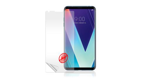 VXTRA LG V30S ThinQ 防眩光霧面耐磨保護貼 保護膜(非滿版)